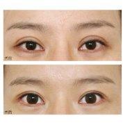 广州美诗沁双眼皮修复多少钱?